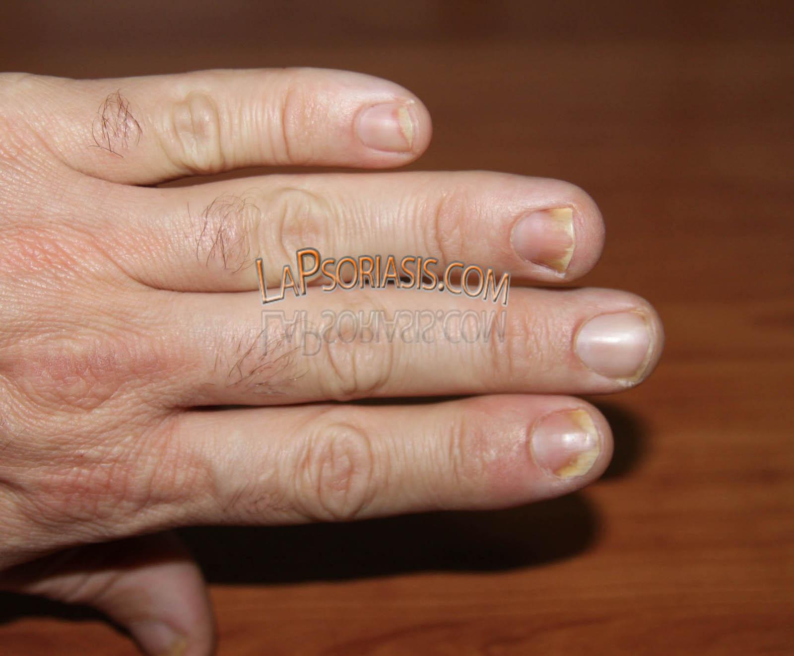 El tratamiento atopicheskogo de la dermatitis sobre los codos