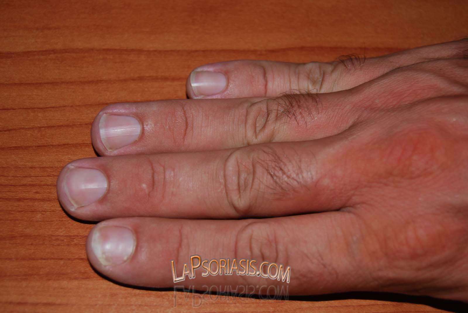 La psoriasis de la foto en las manos y los pies de la foto
