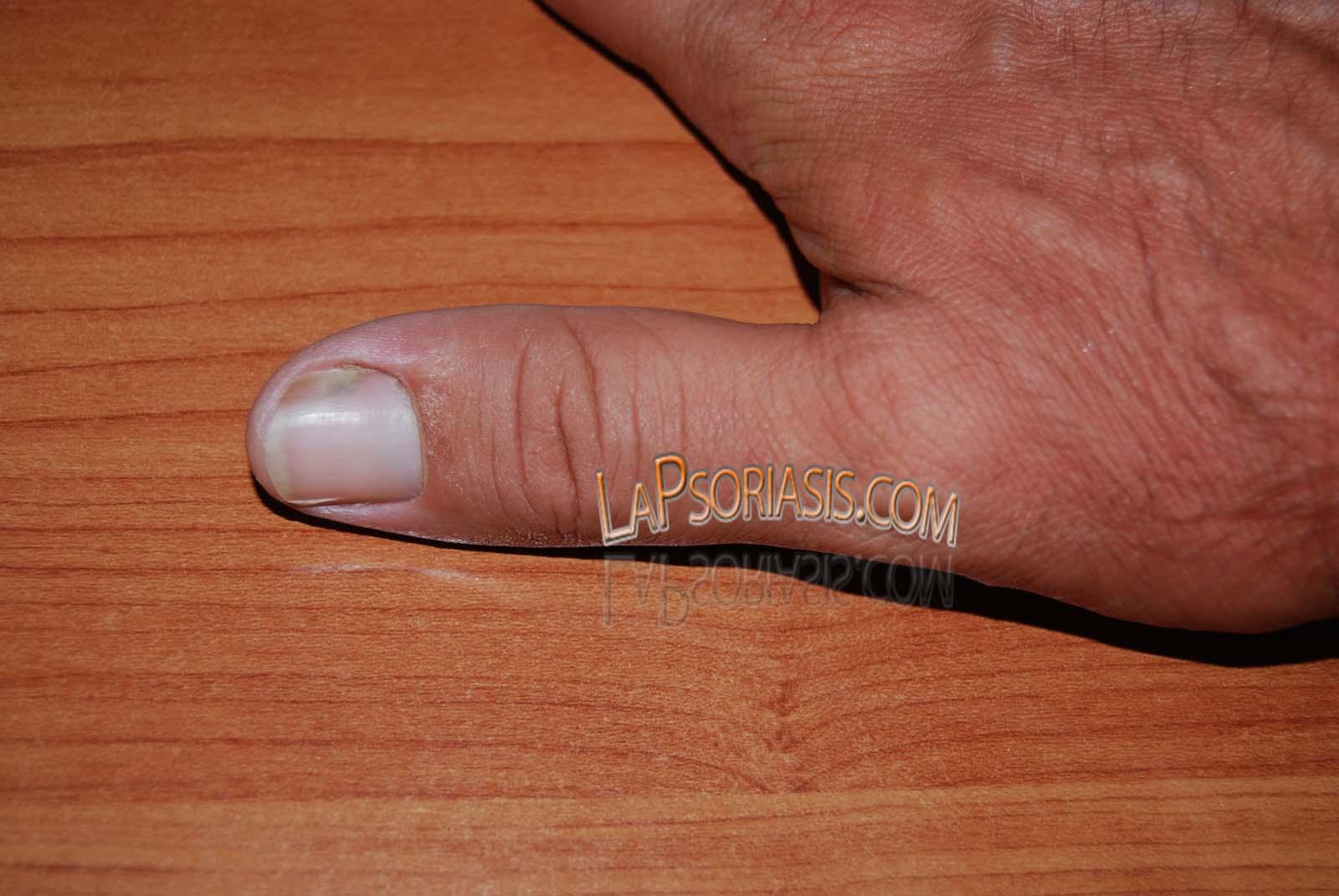 Atopichesky la dermatitis sobre la rodilla de la foto