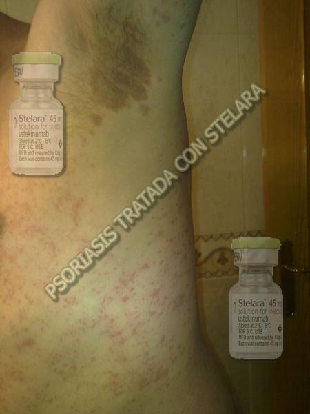 Una alimentación a los niños con atopicheskim por la dermatitis