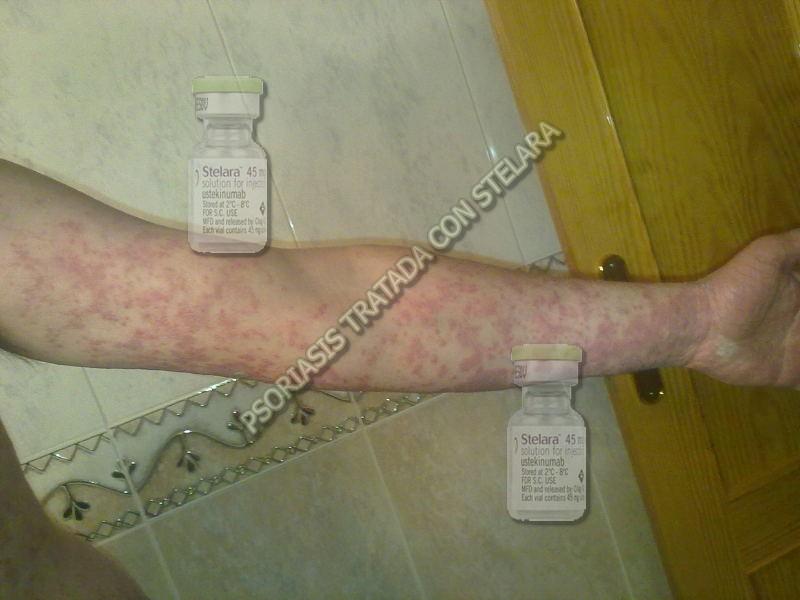 Se puede sanar la eccema por la grasa de lubricación